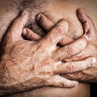 Costochondritis – A Benign Cause of Chest Pain